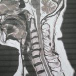 寒くなる季節に生じやすい 頸椎ヘルニア