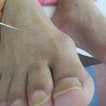 外反母趾の治療と対策