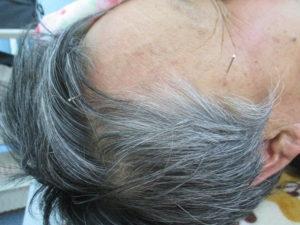 顔の鍼 かしま山鍼灸整骨院